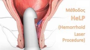 Μέθοδος HeLP (Hemorrhoid Laser Procedure),