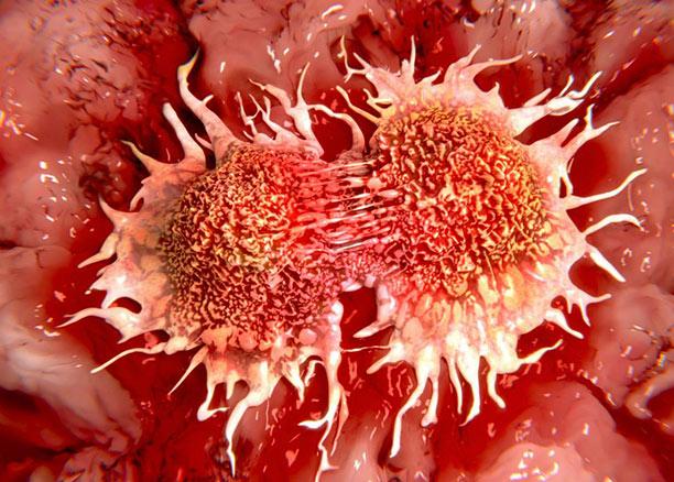 Πρόληψη Καρκίνου Πρωκτού σε Ανθρώπους με HPV