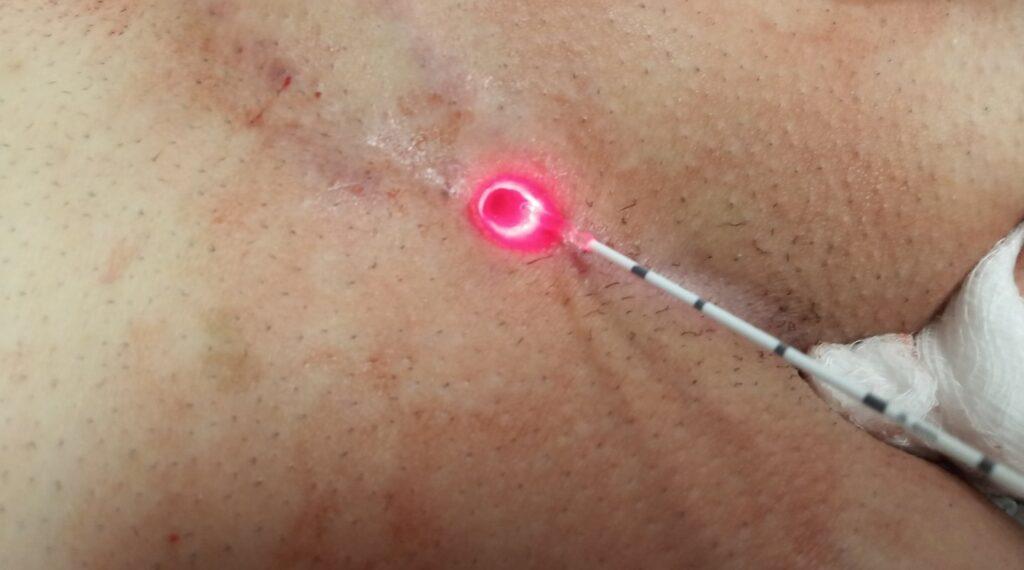 Κύστη Κόκκυγος: Θεραπεία Χωρίς Χειρουργείο